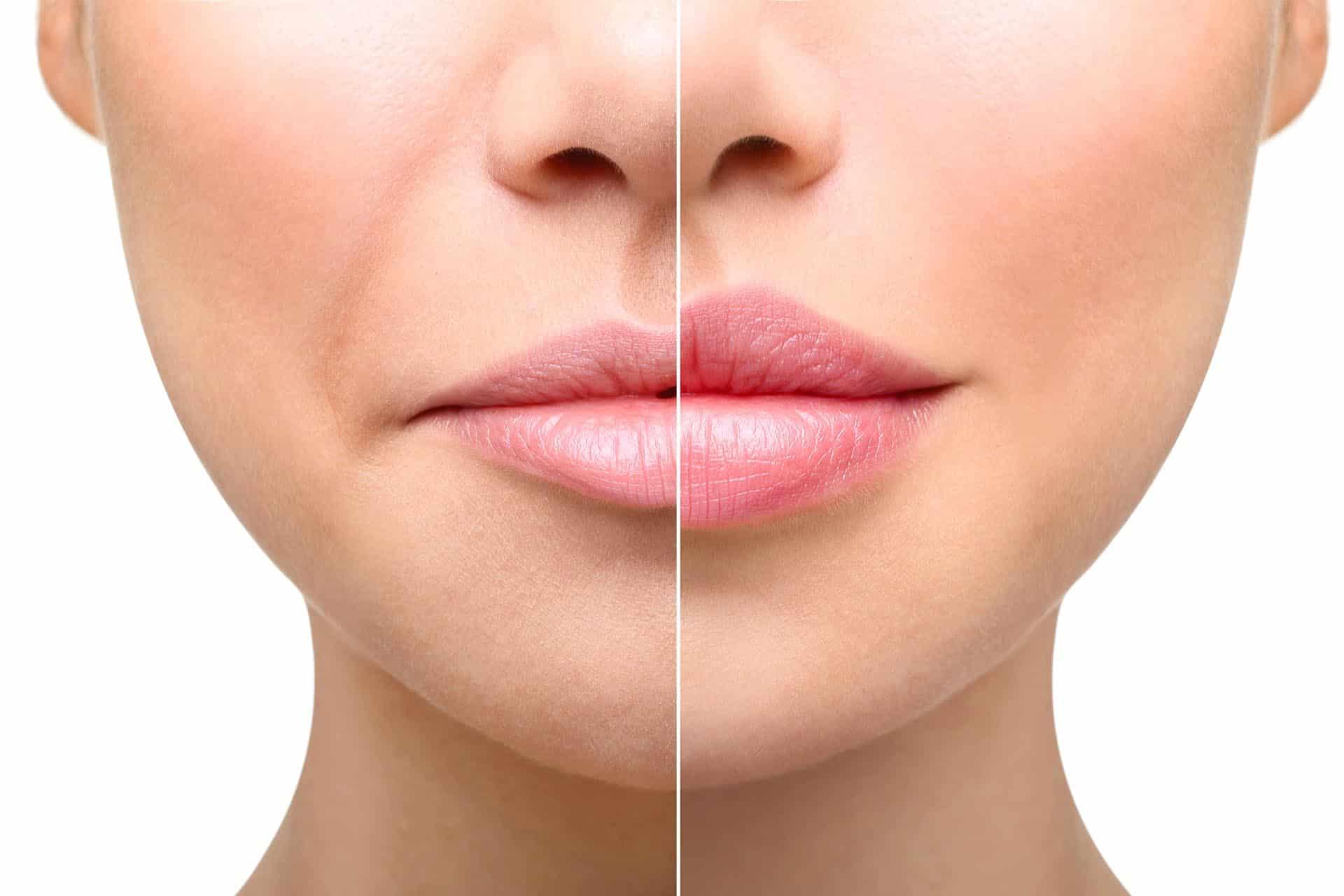Операция по увеличению губ