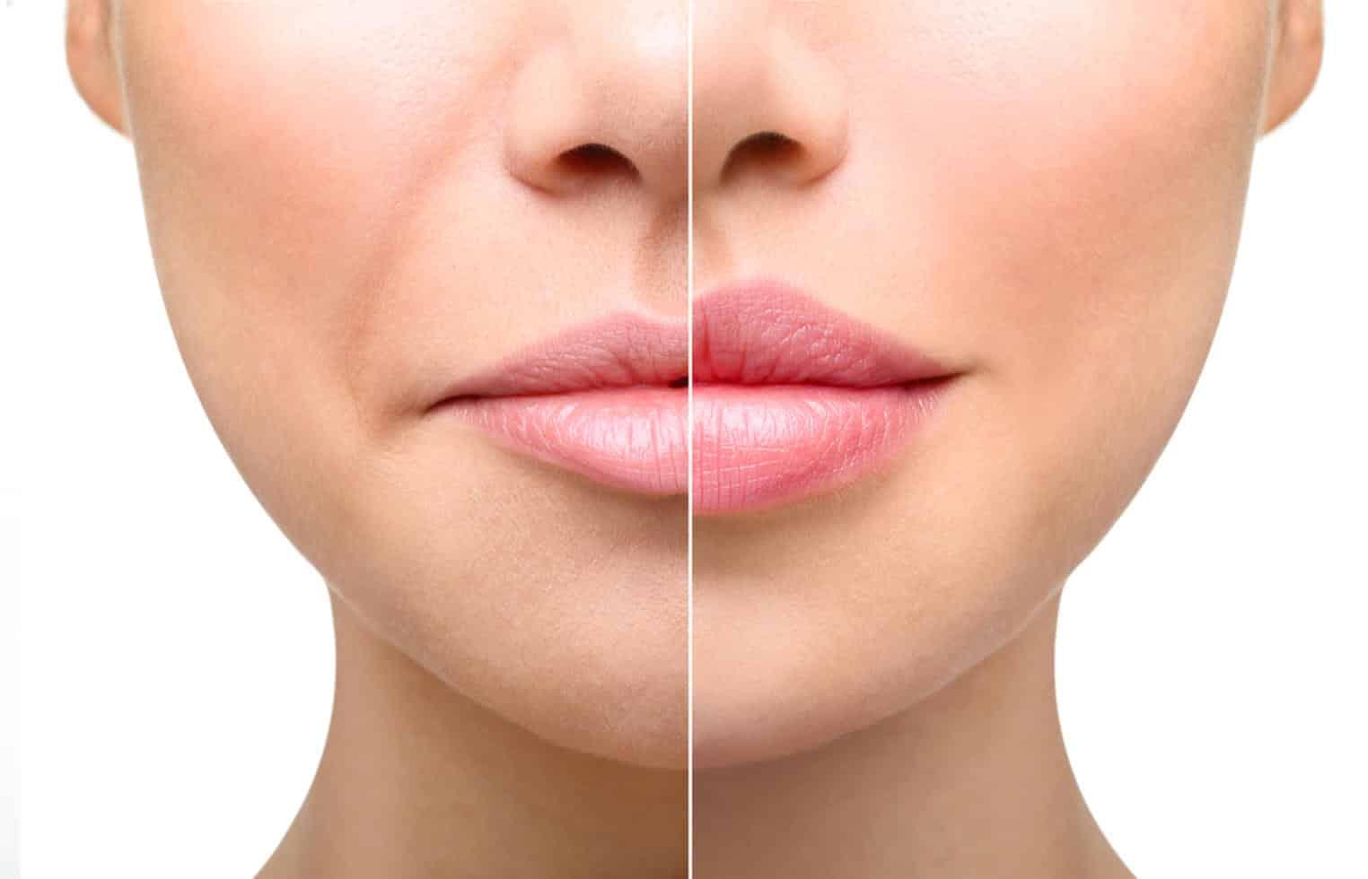 Осложнение после увеличения губ