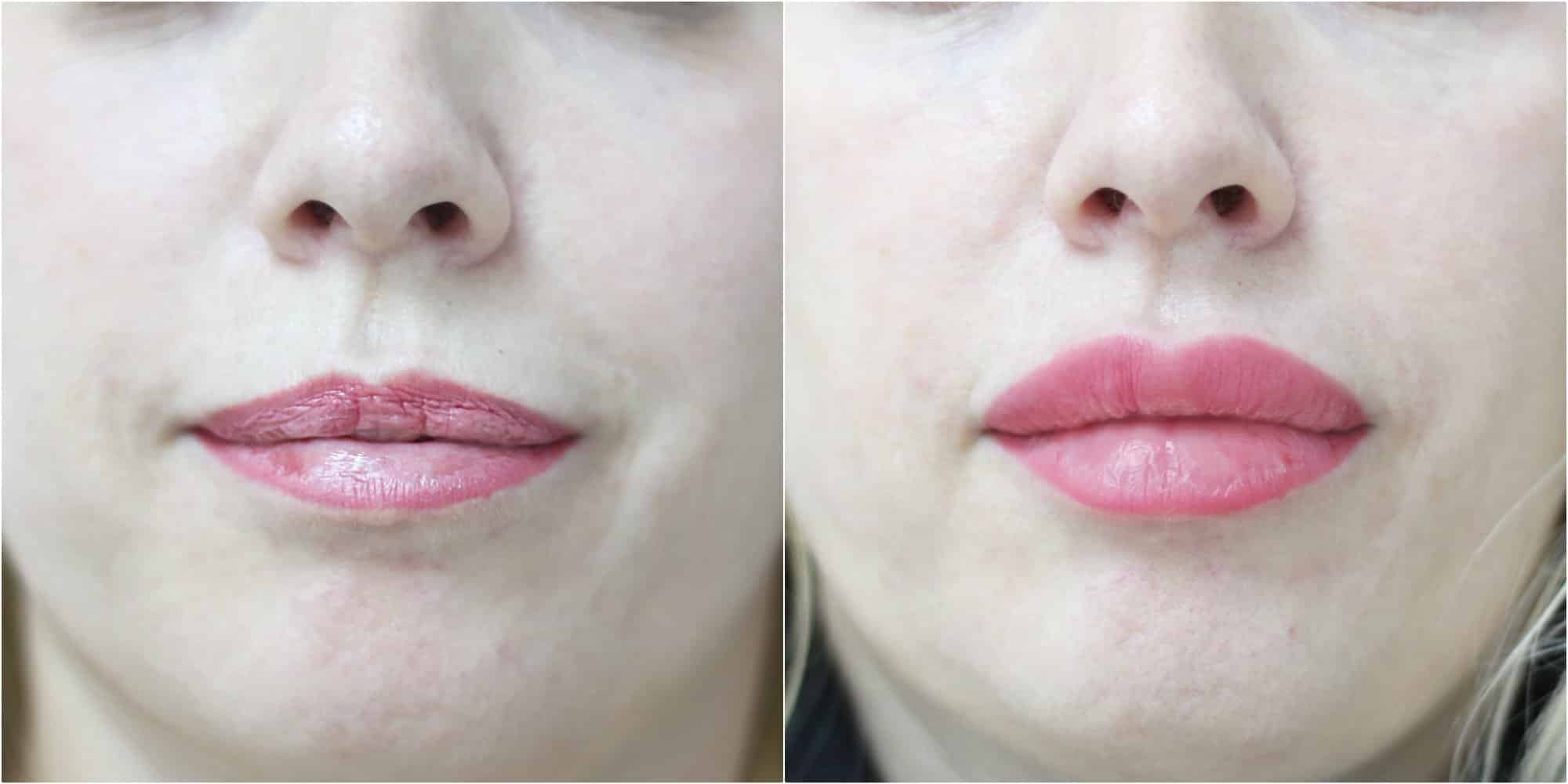 Синяки после увеличения губ