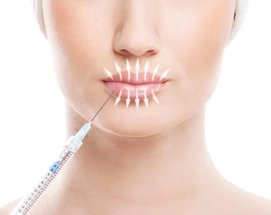 Самый плотный филлер для увеличения губ