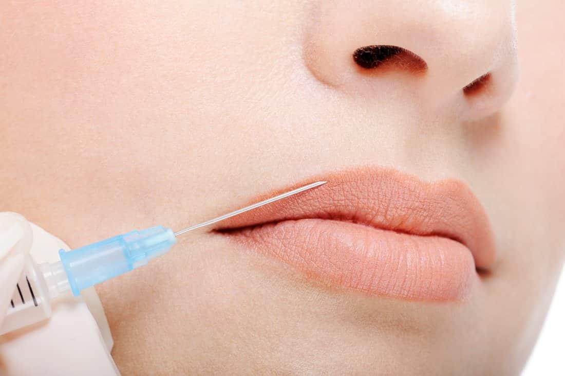 Филлер для увеличения губ