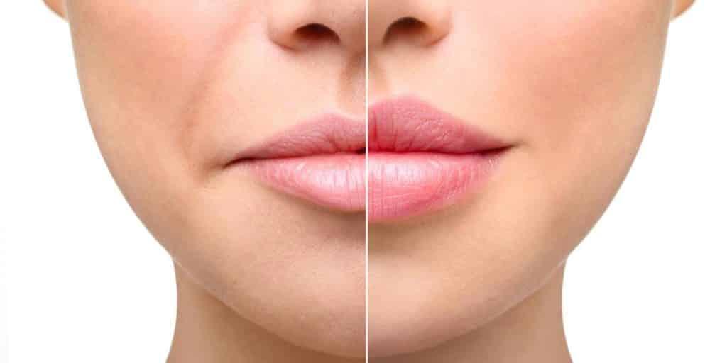 Уход после увеличения губ