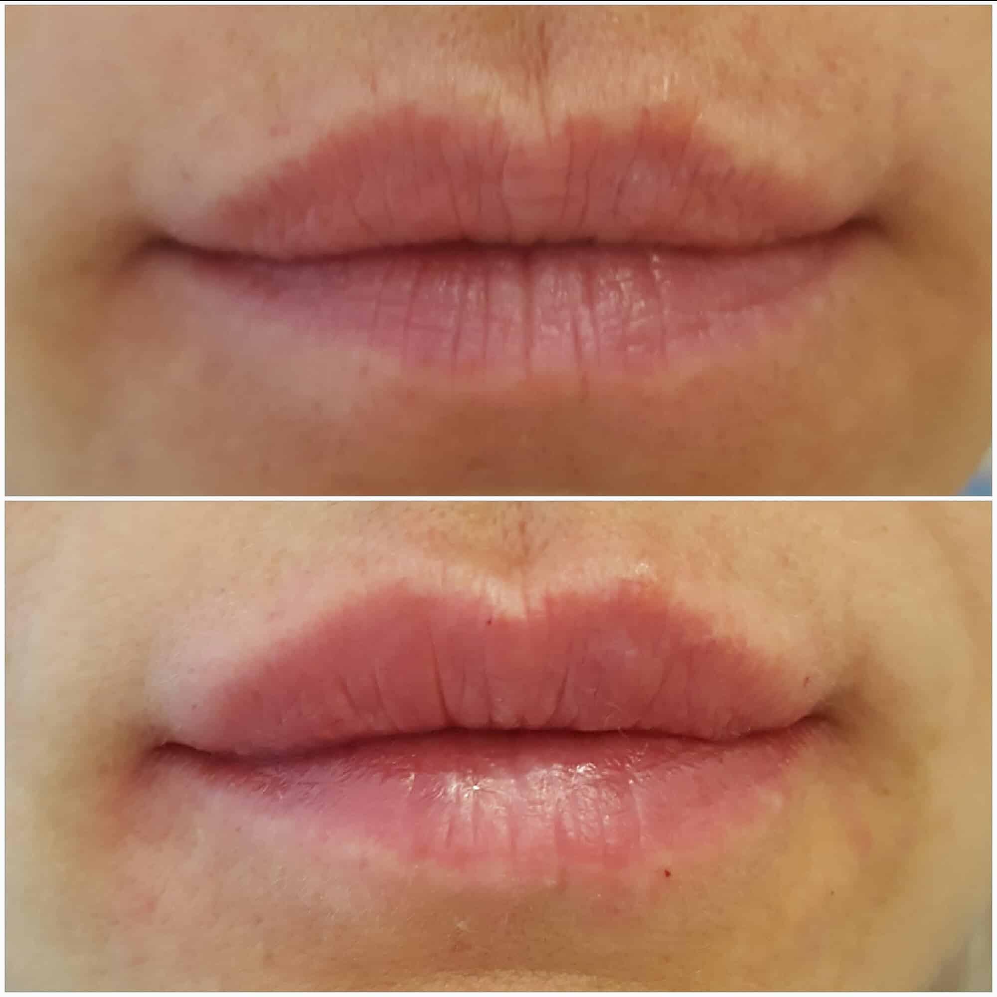 Парижская техника увеличения губ