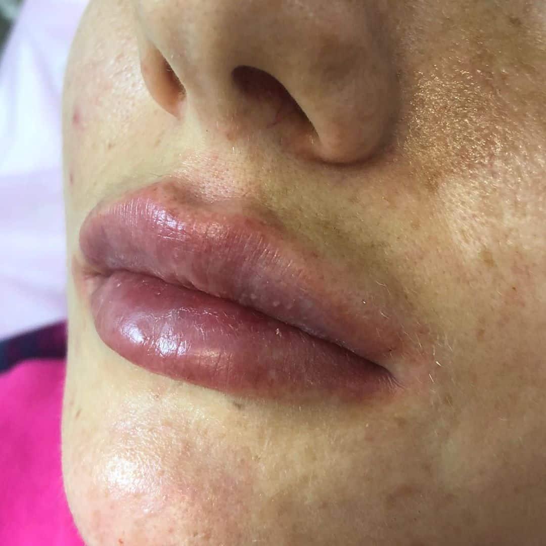 Гематомы после увеличения губ гиалуроновой кислотой
