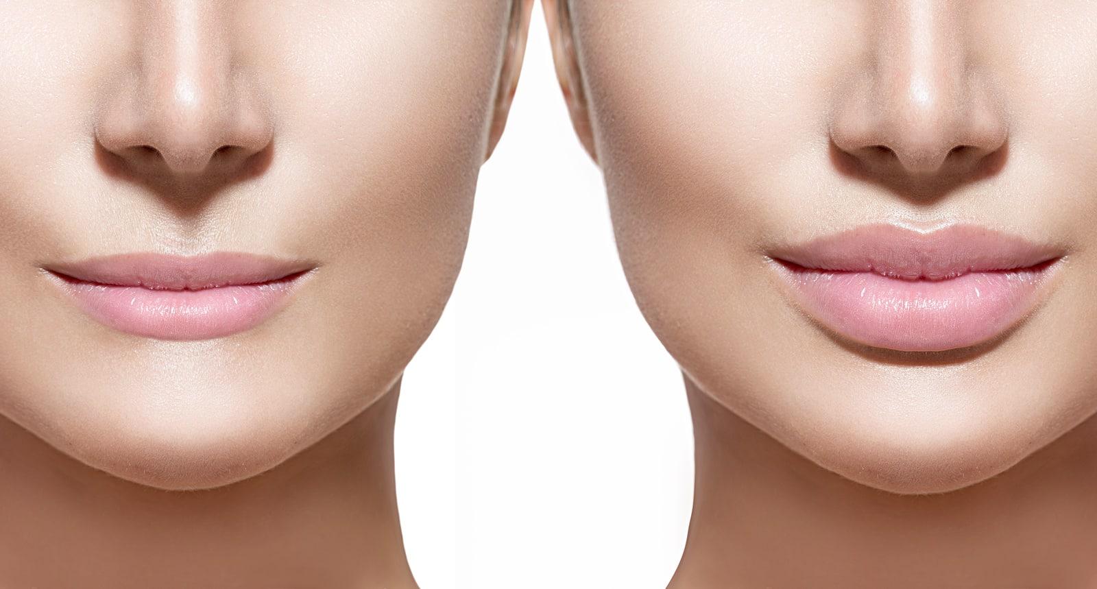Что делать после увеличения губ гиалуроновой кислотой