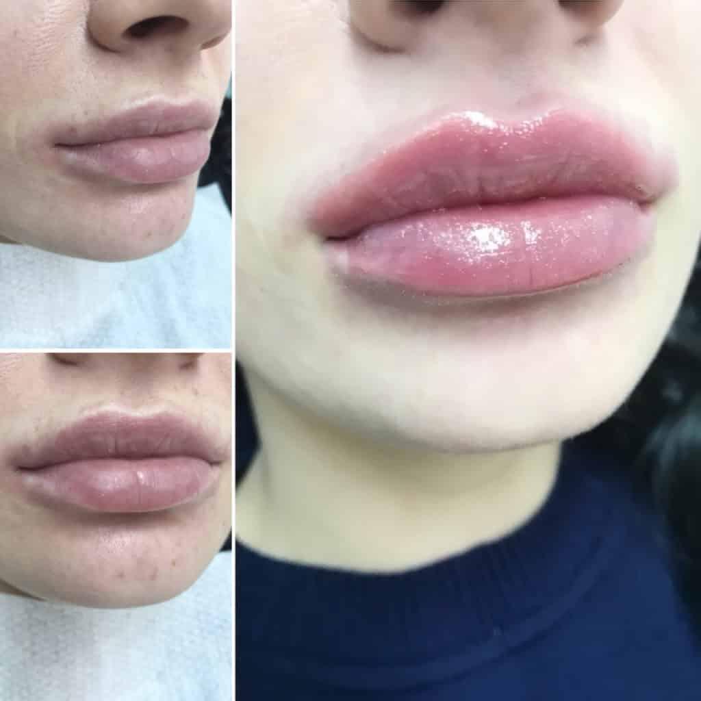 Каким препаратом лучше увеличивать губы