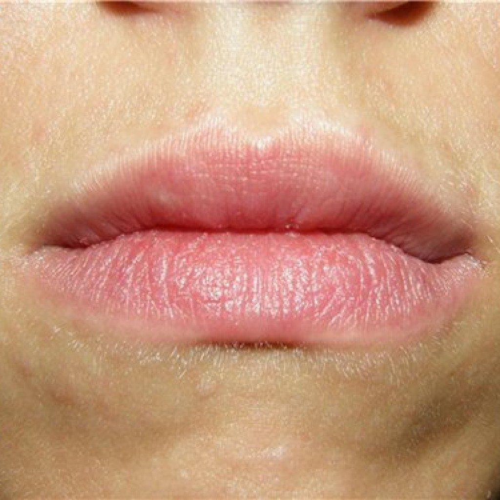 Отек после увеличения губ