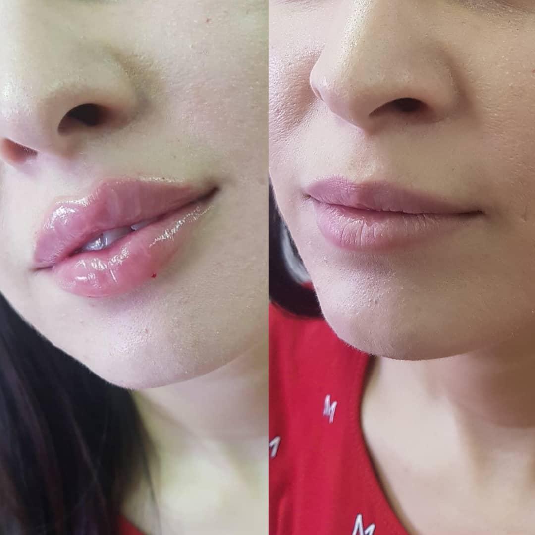 После увеличения губ гиалуроновой кислотой могут быть разные последствия