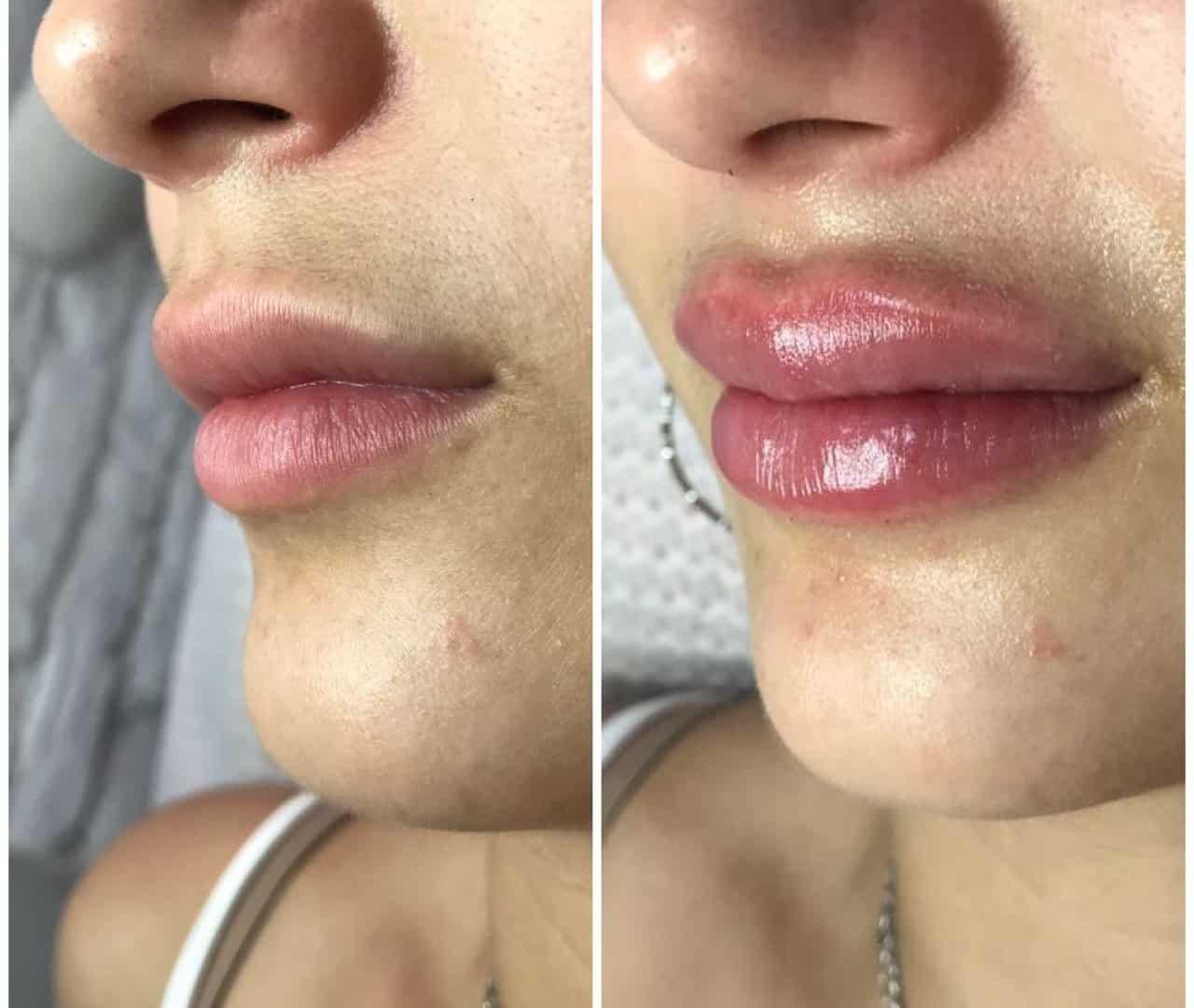 Сколько держатся синяки после увеличения губ