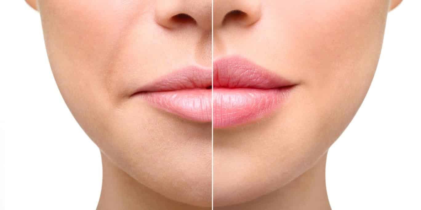 Техника увеличения губ филлерами