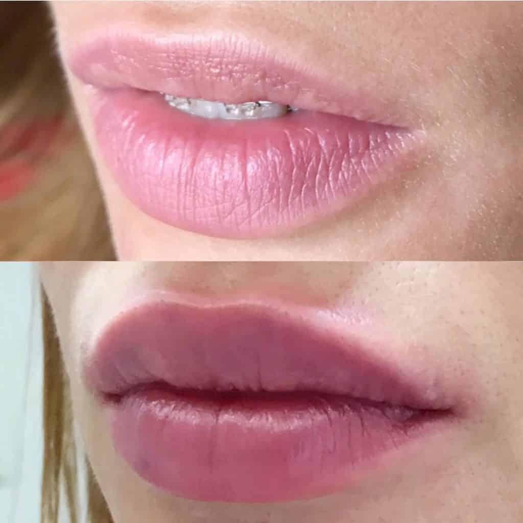 Уход за губами после увеличения гиалуроновой кислотой первые дни