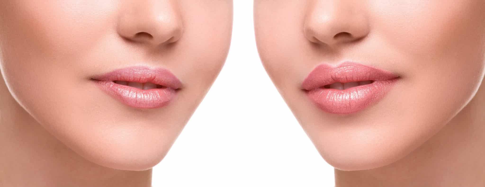 Гиалуроновые филлеры для губ
