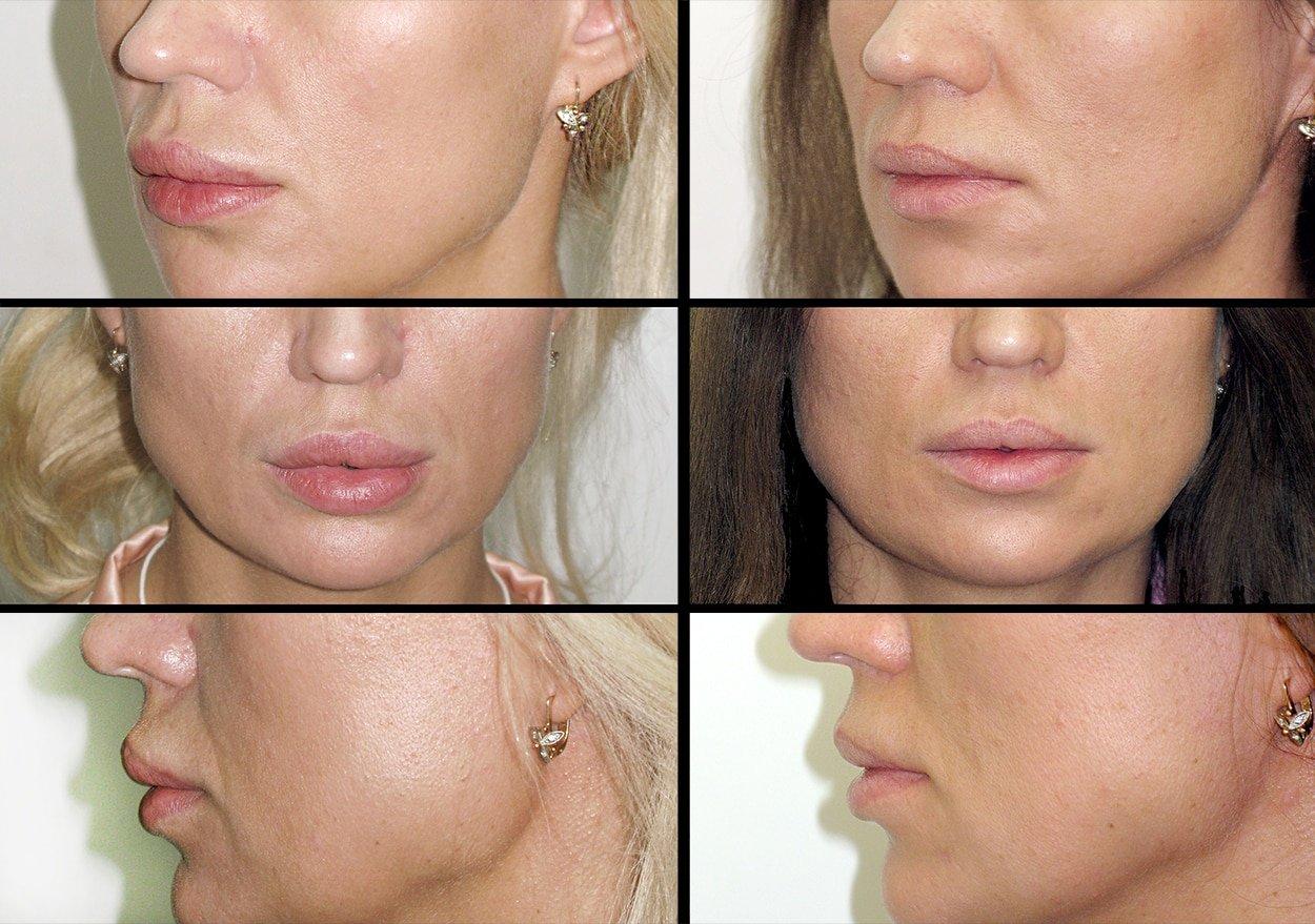 Инцизионные операций по увеличению губ