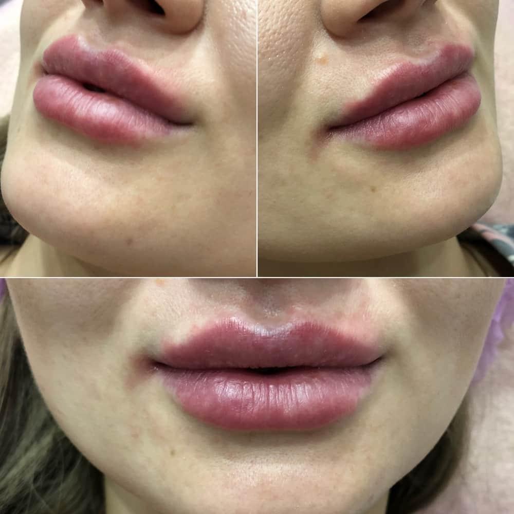 Что использовать для увеличения губ
