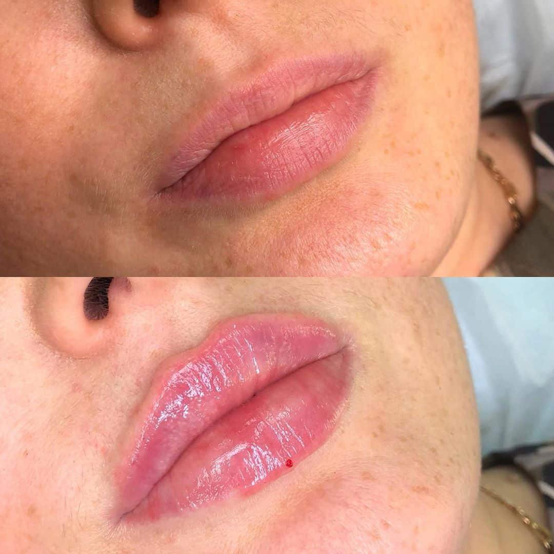 Осложнения после увеличения губ