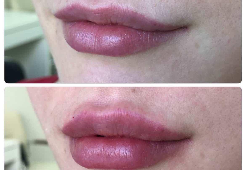 Увеличивать губы филлером