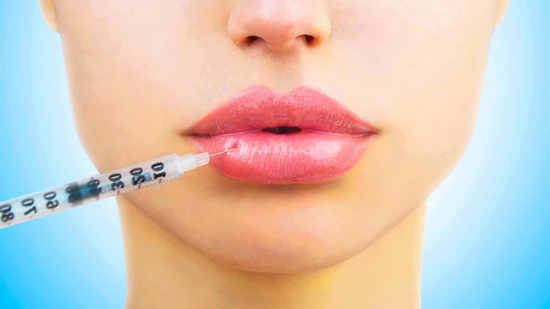 Аугментация губ филлером