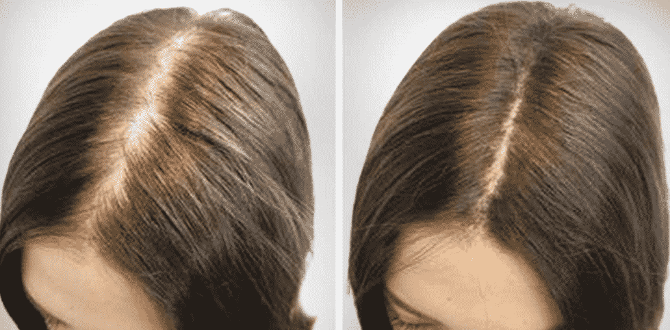 мезотерапия что это такое для волос