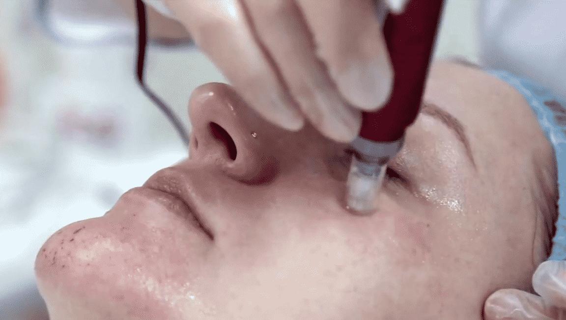 фракционная мезотерапия кожи