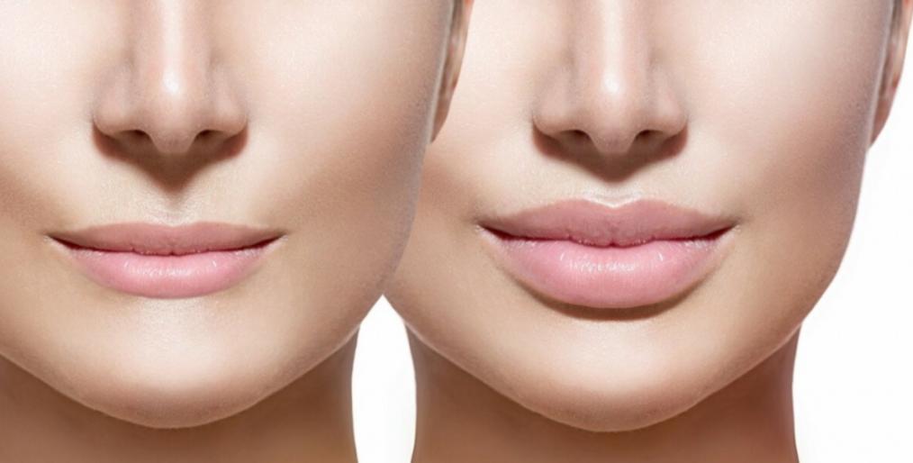 электропорация губ