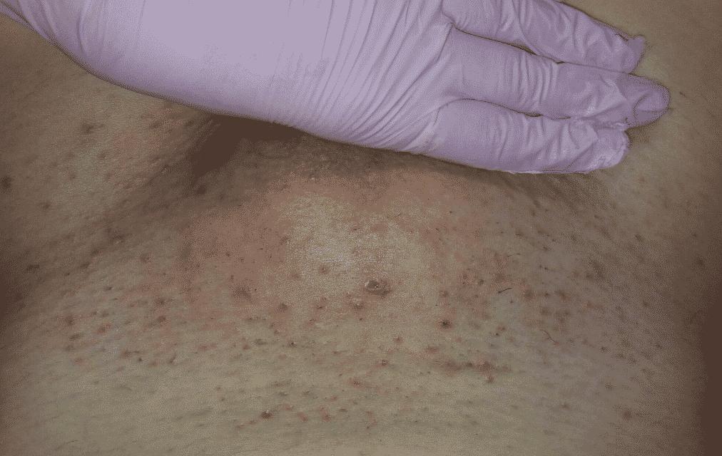 Пупырышки после эпиляции