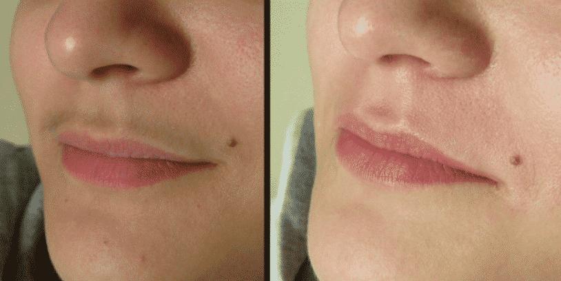 Восковая эпиляция верхней губы