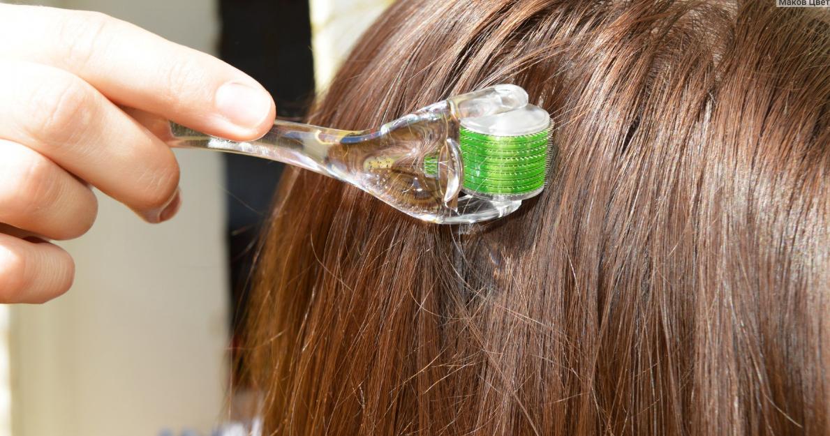 какой мезороллер выбрать для волос