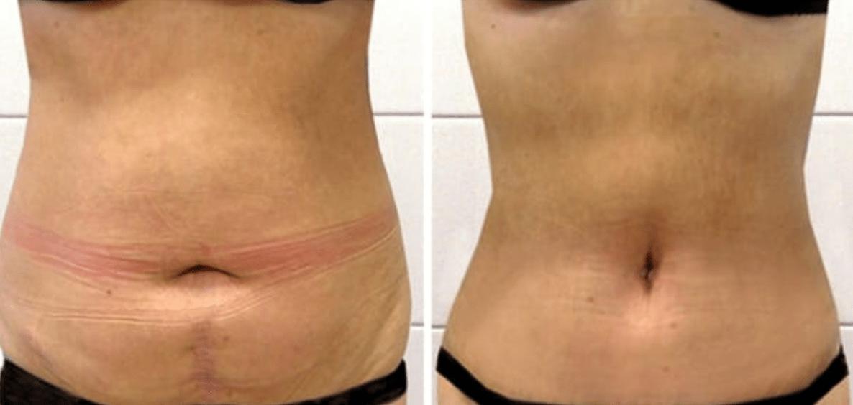 Мезотерапия для живота фото до и после