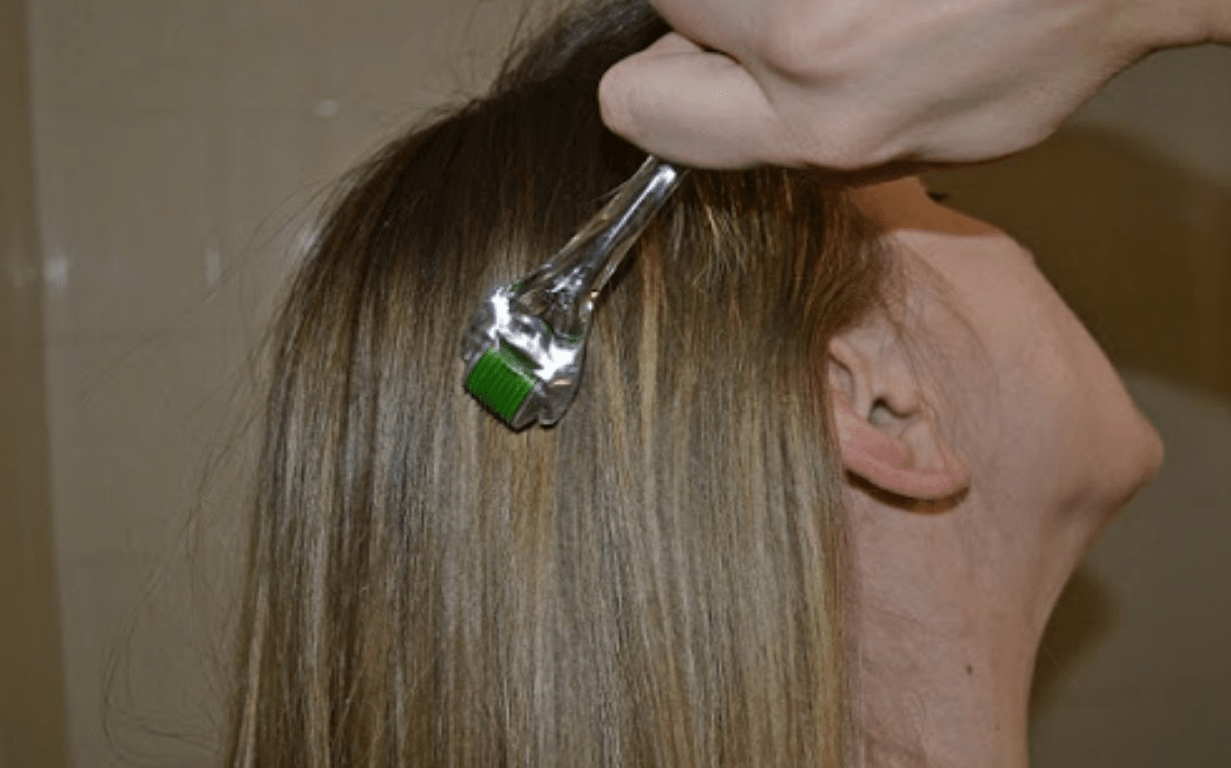 Мезороллер для волос как пользоваться в домашних условиях