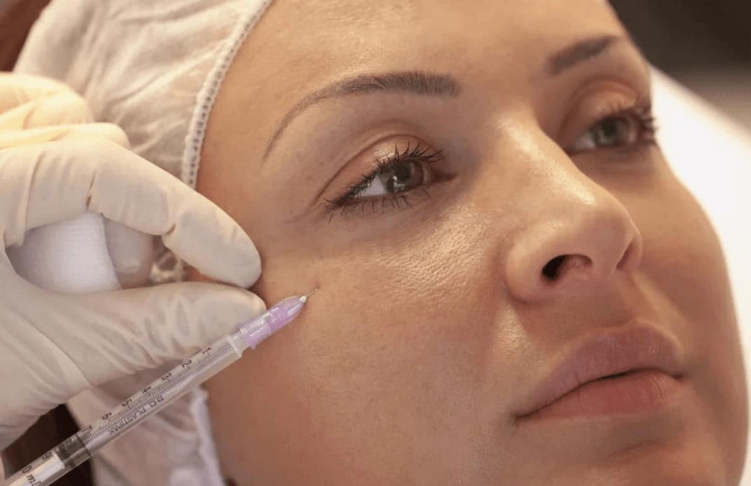 Что нельзя после мезотерапии лица