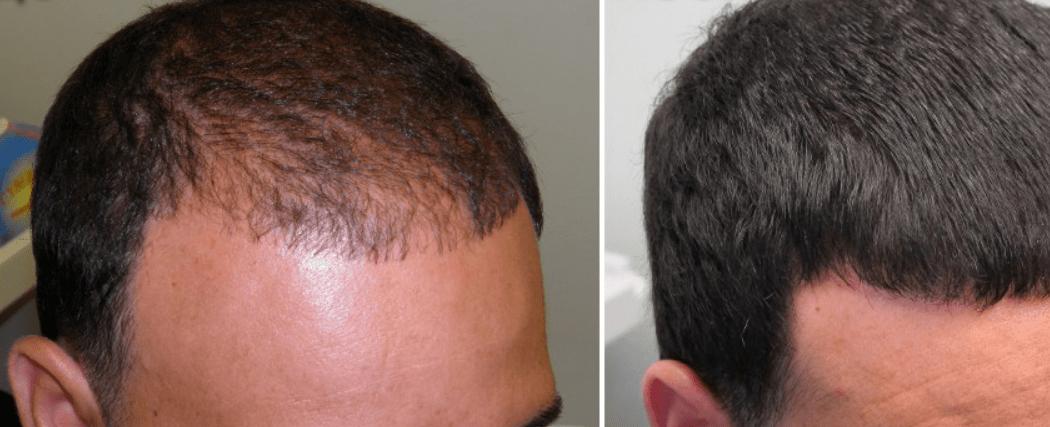 Мезотерапия для волос мужчинам