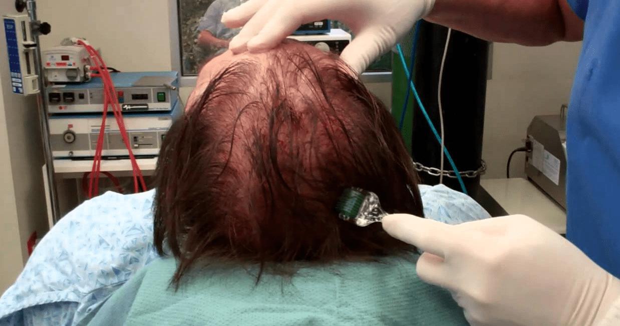 Мезороллер для волос в домашних условиях