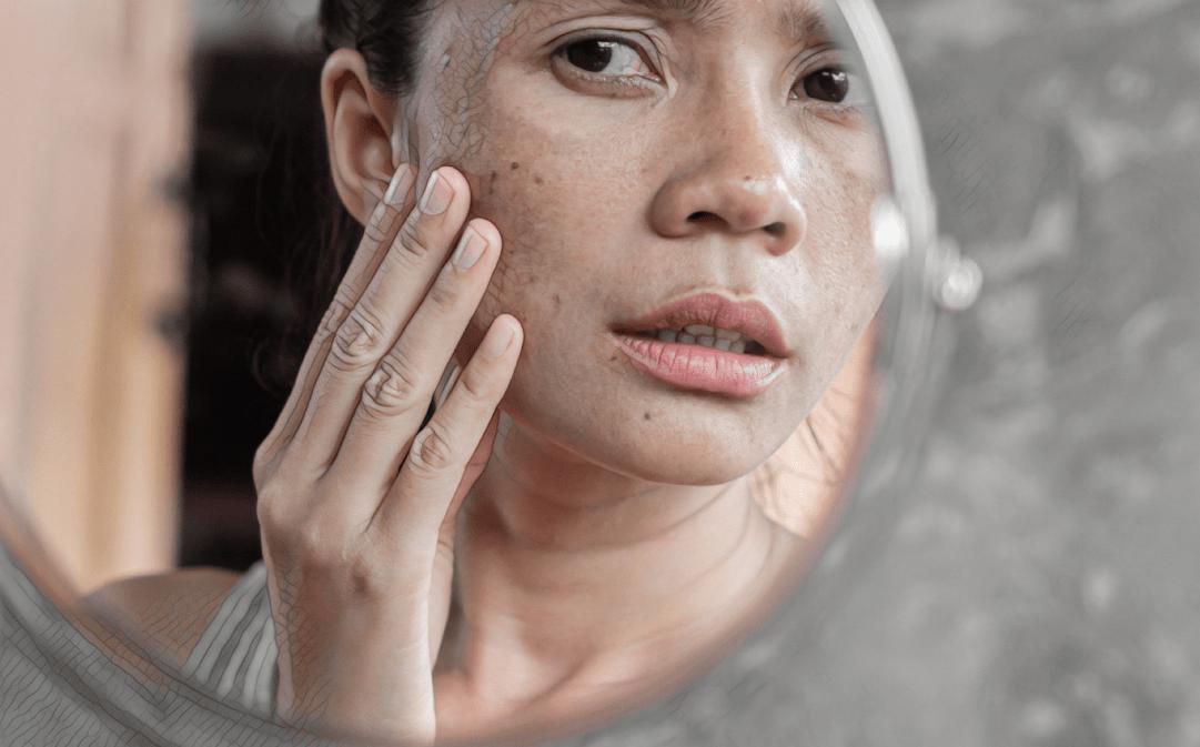 Можно ли делать массаж лица после мезотерапии