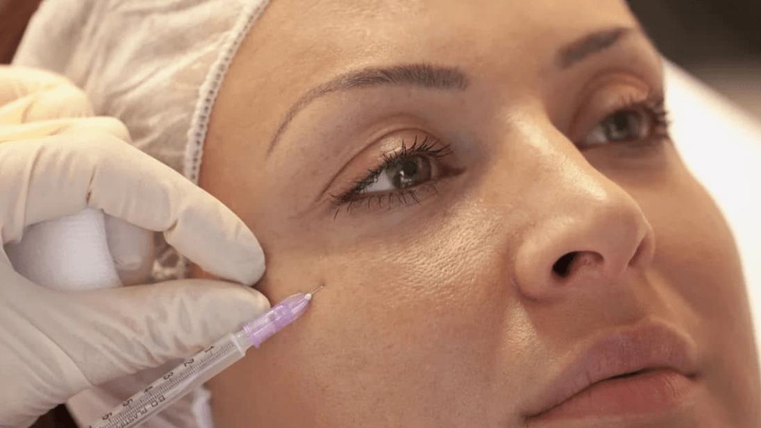 После мезотерапии отеки под глазами что делать