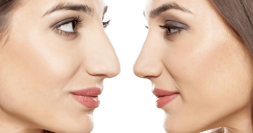 Мезотерапия носа
