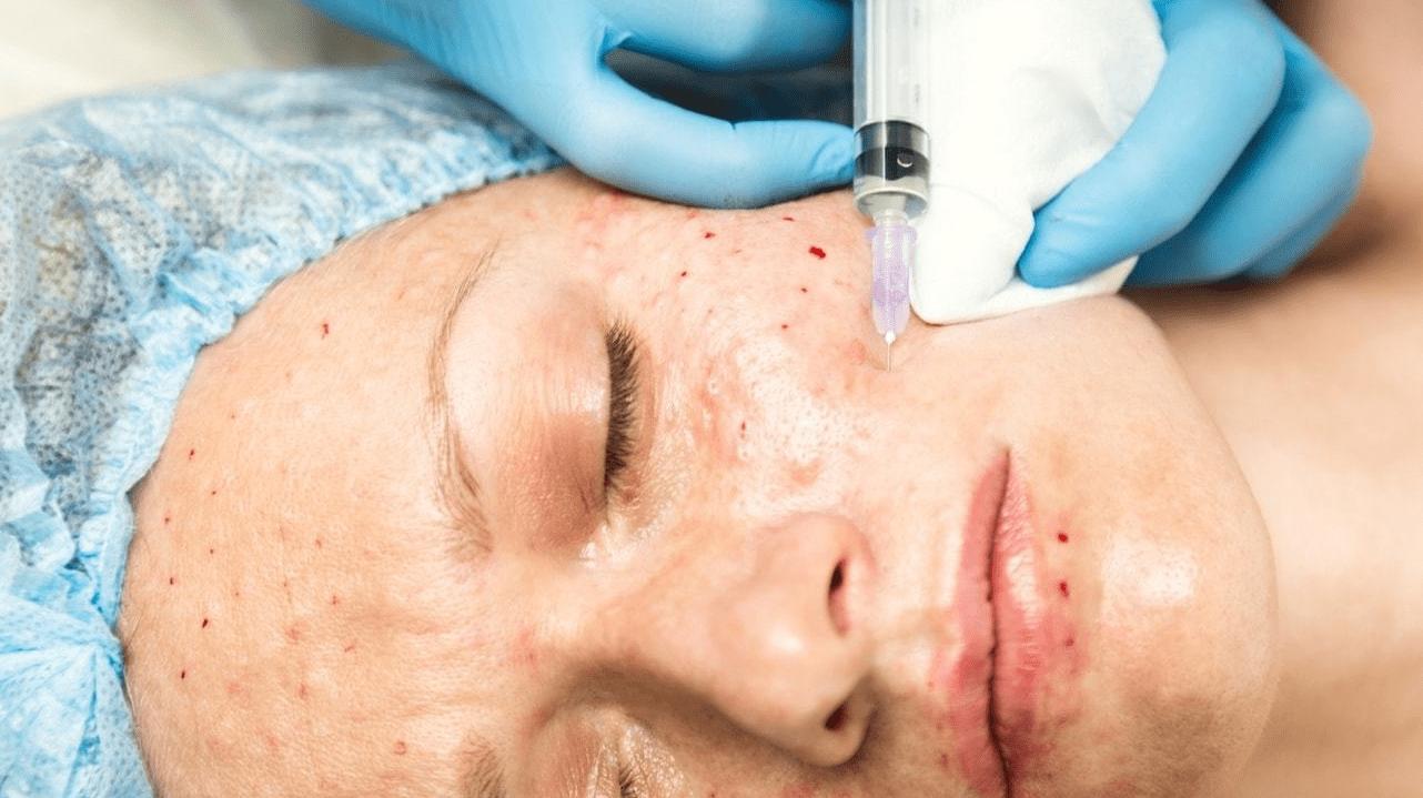 Как убрать синяки после мезотерапии
