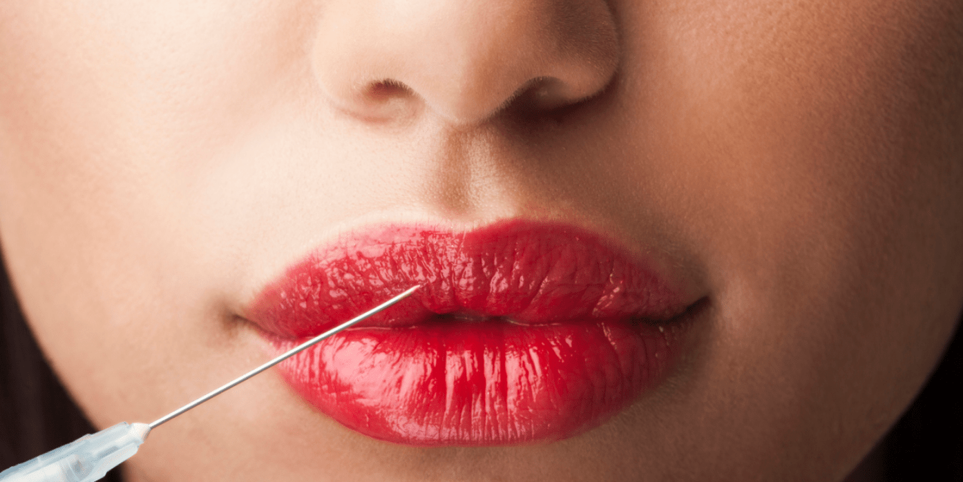 Мезотерапия для губ