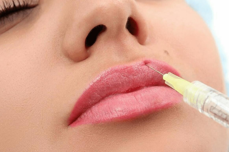 Увеличение губ мезотерапия