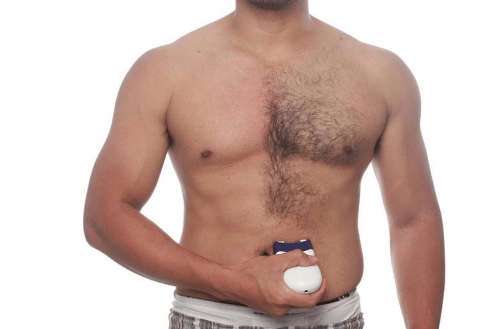 Эпиляция грудных волос у мужчин