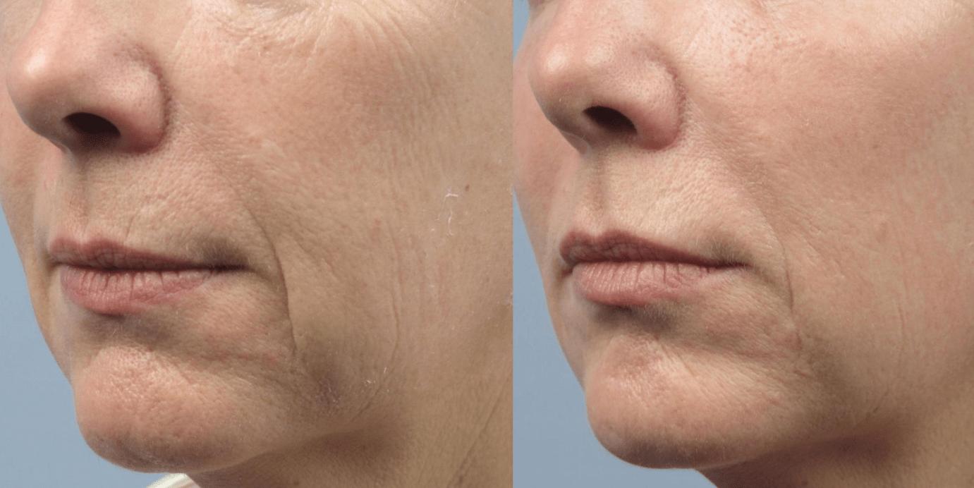 мезотерапия лица после 40 лет