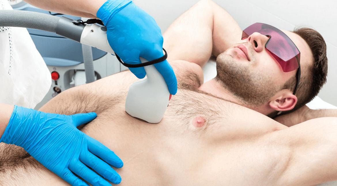 Эпиляция груди у мужчин