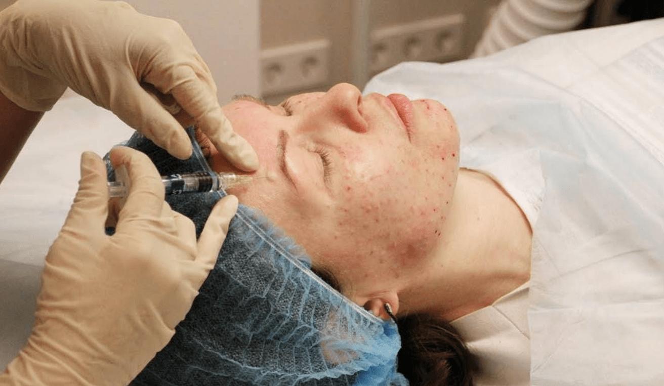 Вазис мезотерапия