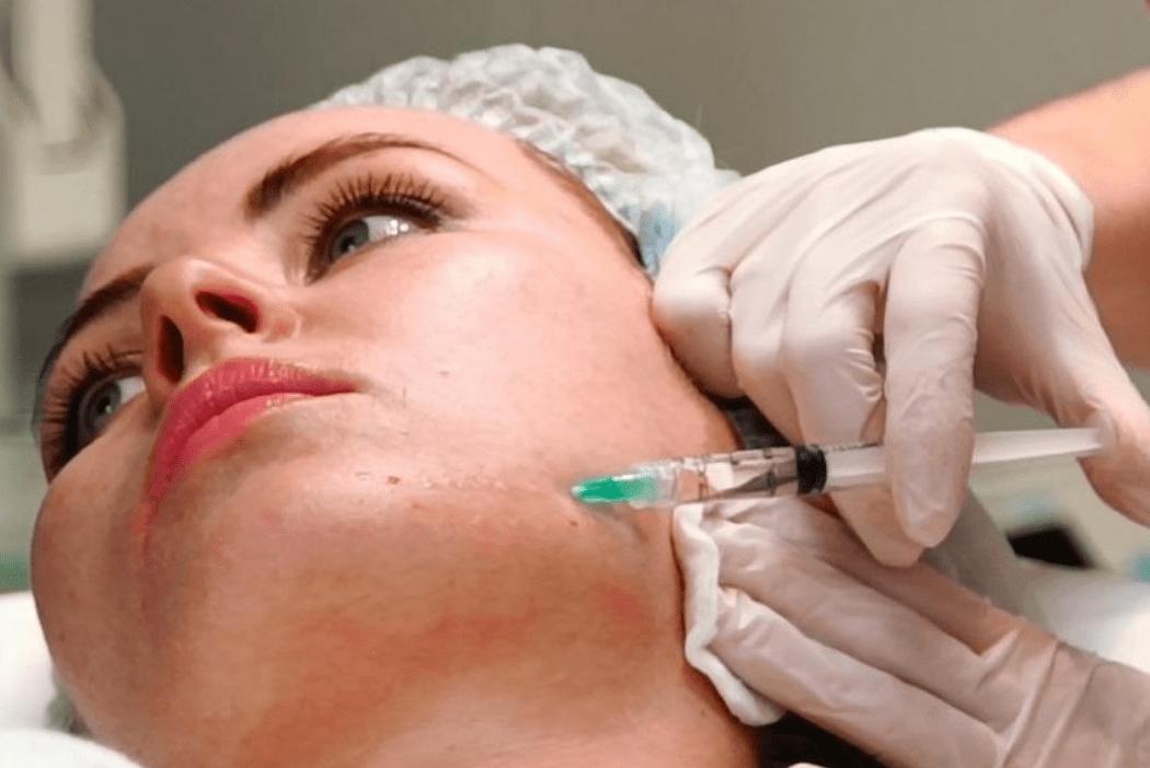 Пилинг и мезотерапия сочетание