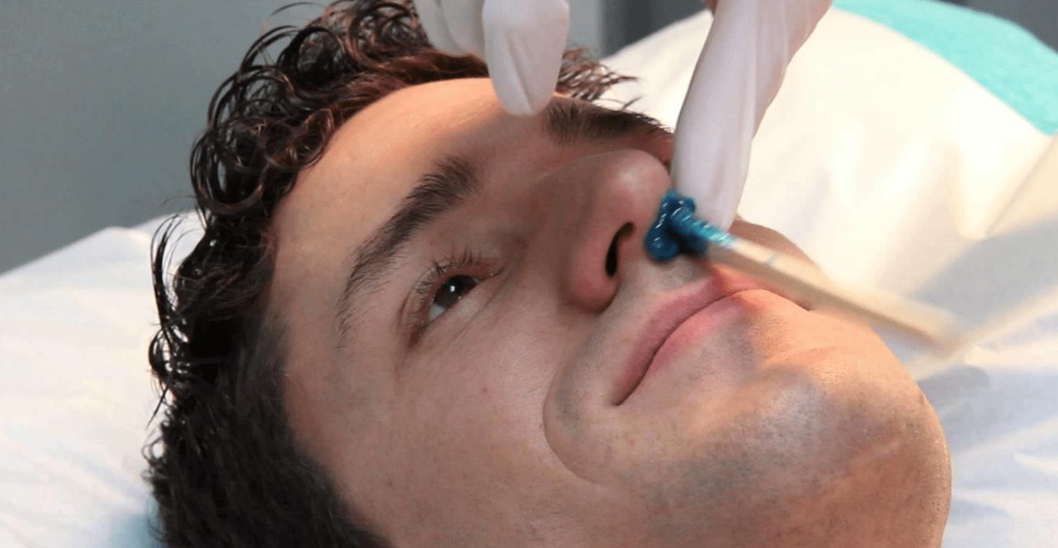Шугаринг в носу