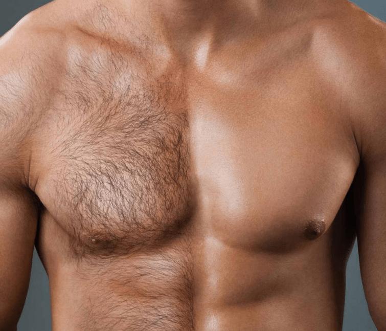 Эпиляция мужской груди
