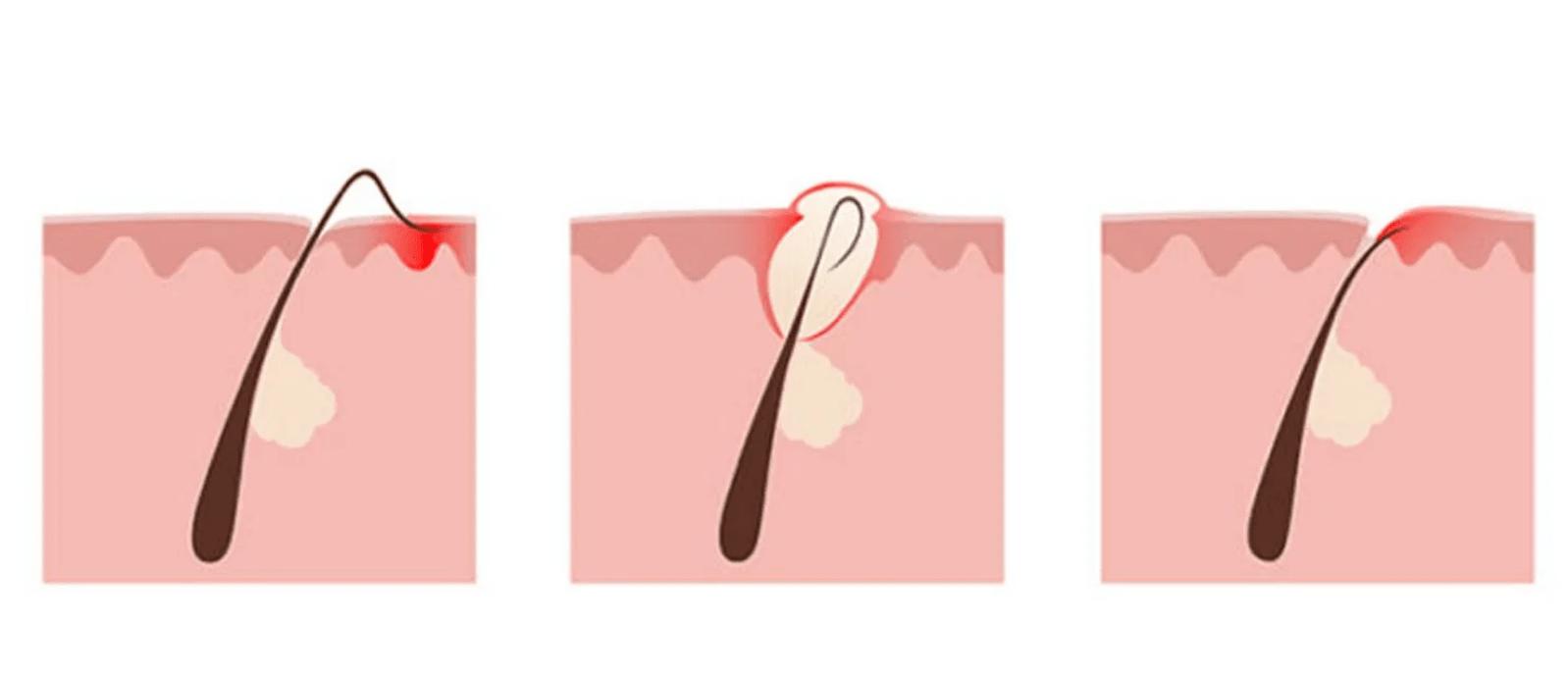 Вросшие волосы после депиляции